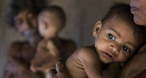 Malnutrition India